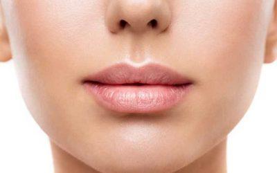 Rellenos de ácido hialurónico en los labios, conoce sus ventajas