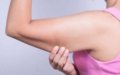 ¿Cómo tonificar los brazos flácidos?