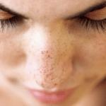Cómo quitar manchas solares de la cara: Consejos para eliminar lentigos solares