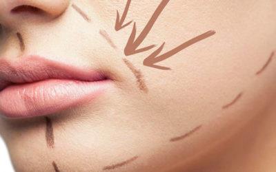 ¿Cómo tratar las arrugas de la risa?