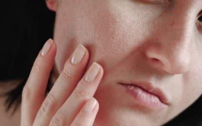 ¿Cómo tratar los poros abiertos de la cara?